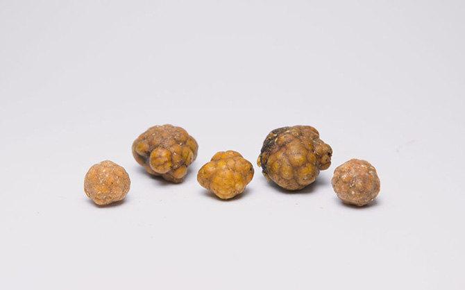 Камни из желчного пузыря