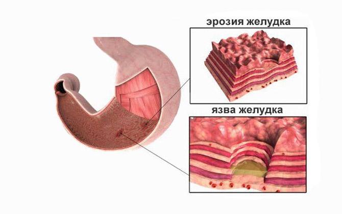Эрозия желудка